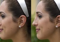 Ce trebuie să știi despre rinoplastie și cât costă să obții un nas perfect?
