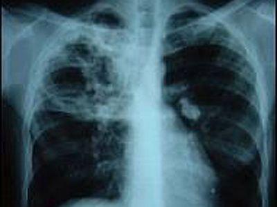 Noi abordări de tratament pentru tuberculoza, o problemă de sănătate majoră în România