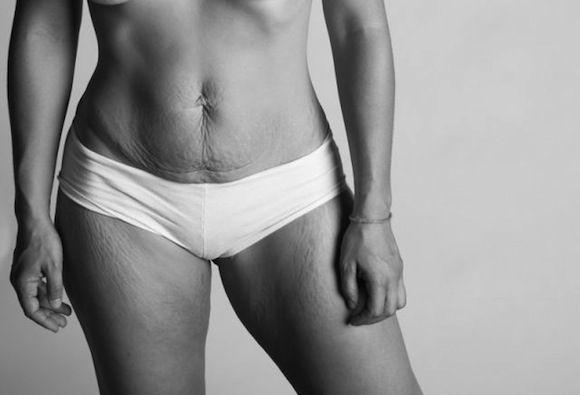 Vergeturi, hemoroizi și lărgirea vaginului. Cum se schimbă corpul femeilor după sarcină?