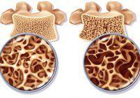 Vitamine și minerale de care avem nevoie ca să ne menținem oasele puternice