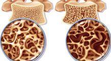 Nu doar de calciu ai nevoie. Cei opt nutrienți care întăresc oasele și te feresc de osteoporoză