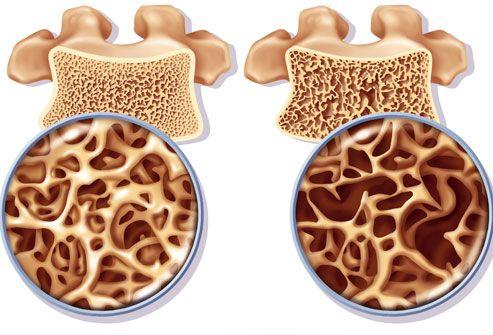 Ce să mănânci și ce să eviți ca să se fixeze calciul în oase și să te ferești de fracturi și osteoporoză