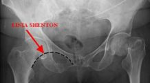 Infarctul osos: Așa cum inima cedează, când sângele nu mai circulă bine, tot la fel se poate întâmpla și cu oasele