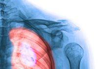 O substanță nocivă care se găsește în toate locuințele poate duce la apariția unor forme de cancer. Descoperirea unui profesor universitar român