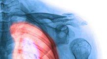 6 cauze ale cancerului pulmonar care n-au legatura cu fumatul