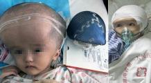 Ea este fetița care a beneficiat de prima operație de reconstrucție a craniului prin imprimare 3D