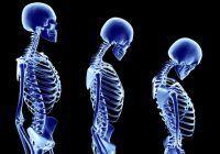 Cum să întârziați îmbătrânirea coloanei vertebrale