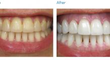 Albirea dinților acasă sau la stomatolog. Iată ce trebuie să alegi în aceasta primăvară!