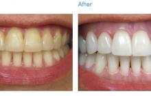 Cea mai ieftină metodă să-ți albești dinții. Costă doar un leu