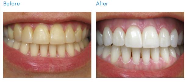 Vrei să-ți albești dinții? Iată 8 lucruri despre care nu știai