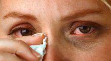 Sensibilitatea la lumină și senzația de nisip în ochi, semne de conjunctivită