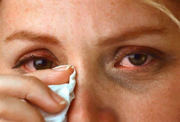 Boala care te lasă fără vedere nu are simptome la început. 50% dintre pacienți sunt nediagnosticați