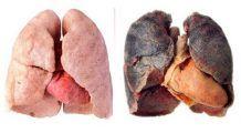 Semne că plămânii nu funcționează bine. Nu le ignorați, pot anunța cancerul