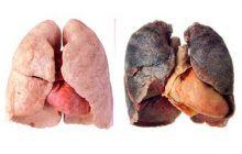 Cum e posibil să-ți distrugi plămânii într-un singur an? Greșeala pe care mii de tineri o fac. A povestit adolescentul ai cărui plămâni arată ca la 70 de ani
