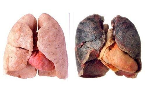Cum să-ți cureți plămânii de mucus