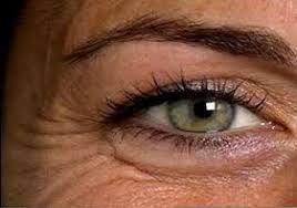 Cum să scapi de ridurile din jurul ochilor