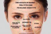 Ai coșuri pe frunte sau obraji? Zonele în care apare acneea îți arată de ce boli suferi