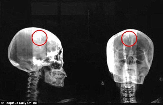 Ce i-au descoperit medicii în creier unei femei care se plângea des de dureri de cap