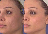 Cum să scapi de cicatrici fără operație laser