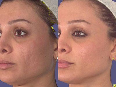 Cum să scapi de cicatricile lăsate de acnee