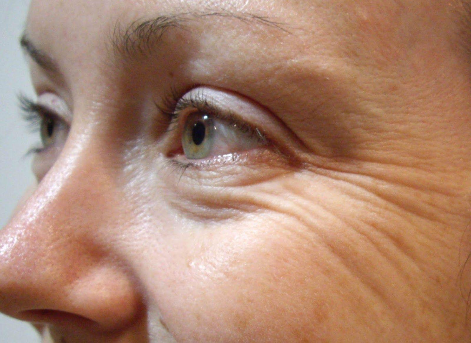 Un dermatolog român a dezvăluit care e cea mai eficientă cremă antirid. Nu costă mult și o poți găsi ușor