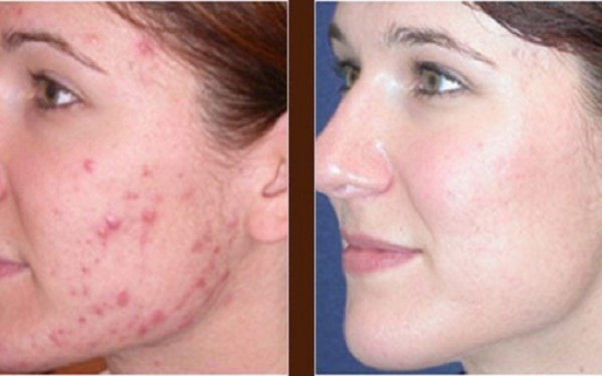 Colagen pentru acnee
