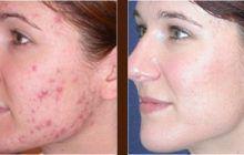 Dr. Mihaela Leventer te învață cum să tratezi corect acneea