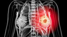 Cum se simte la palpare un nodul la sân canceros