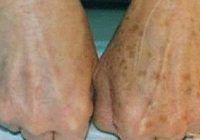 Metode naturale să scapi de petele de pe mâini