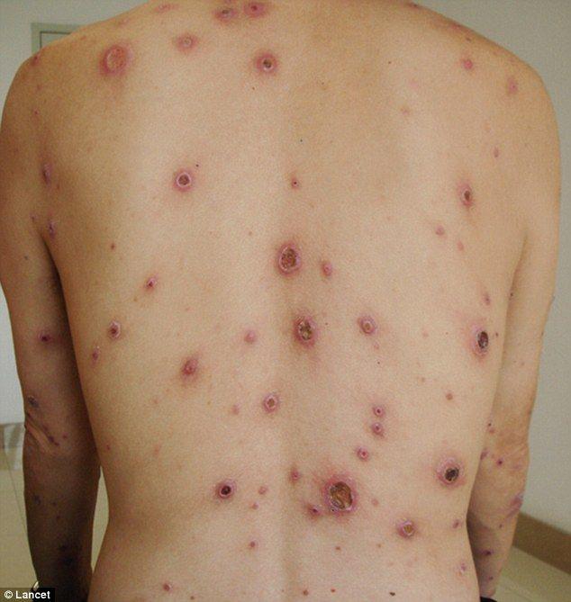 Boli cu transmitere sexuala sifilis poze