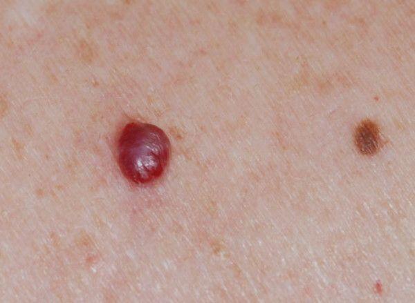 Semnele care prevestesc cancerul se văd pe piele. Când este cazul  să mergem la medic?