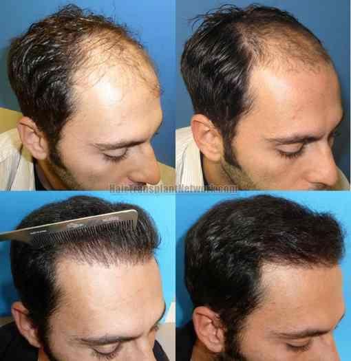 Leac miraculos. Ce se întâmplă dacă pui usturoi la rădăcina părului?