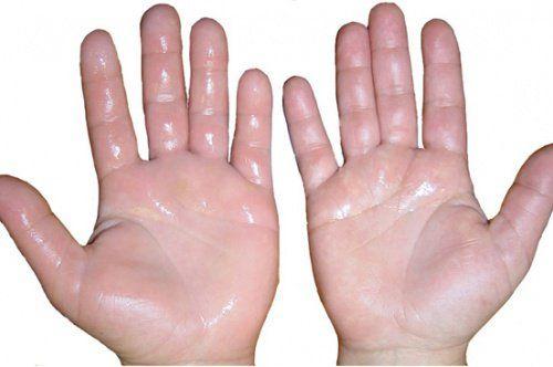 Ai mâinile umflate? Iată ce remedii naturale ai la dispoziție?