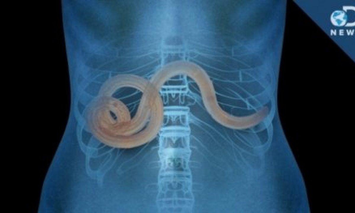 medicament pentru viermi în plămâni