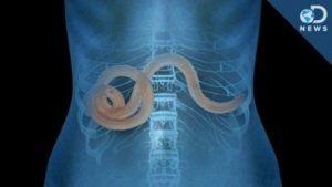 Un chimist român cunoscut: Cancerul este cauzat de un parazit. Dacă este distrus, cancerul va fi vindecat