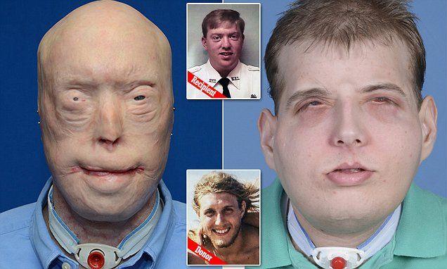 Cel mai complex transplant din lume. Un bărbat mutilat într-un incendiu a primit o față nouă