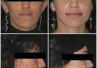 """Chirurgia ortognatică, soluție pentru """"repararea"""" maxilarelor"""