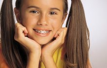 Top 10 lucruri pe care trebuie sa le stie un parinte inainte de a-i pune copilului aparat dentar
