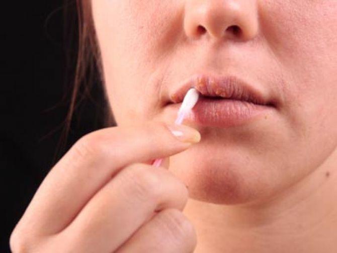 Atenție la aspectul buzelor sau al nasului! Două tipuri de cancer sunt foarte întâlnite iarna