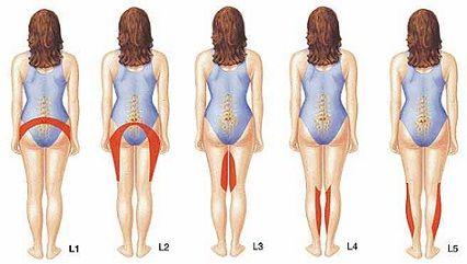 Cum știi că ai hernie de disc și de ce apare? PLUS: metodele de tratament