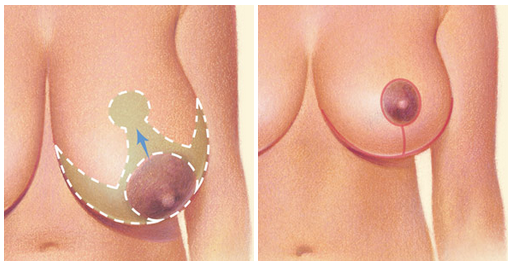 Cum să-ți micșorezi sânii? Tot ce trebuie să știi despre această metodă