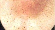 Ai observat că ai aceste pete pe piele? Ai putea avea diabet