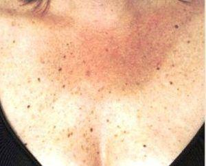 Ai aceste semne pe piele? Pot fi un simptom al diabetului sau al bolilor de tiroidă