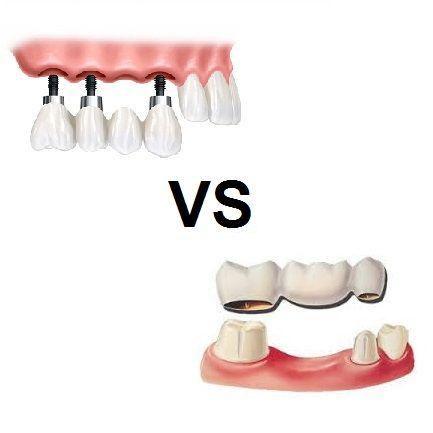 De ce este implantul dentar o soluție mai bună decât puntea dentară?