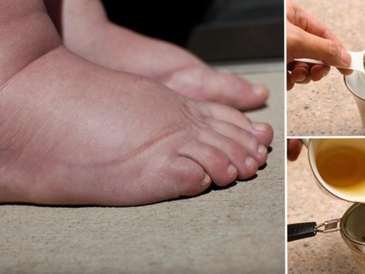 drogurile pot face picioarele să se umfle