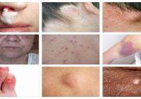 Atenție! Primele semne de cancer apar pe piele