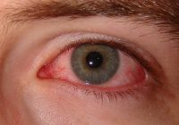 Acest lucru pe care îl faci zilnic îți distruge vederea. Uite cum să îți protejezi ochii
