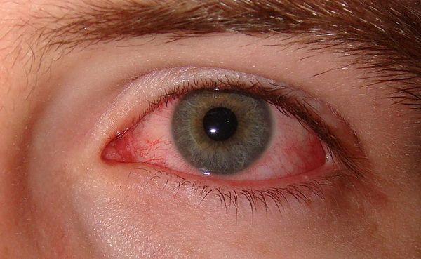 Ochii obosiți, înroșiți și uscați anunță o afecțiune cronică. Iată cum știi că o ai și cum o tratezi