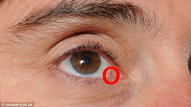 A mers la oftalmolog crezând că are nevoie de ochelari de vedere și a descoperit că are cancer la ochi. De ce apare melanomul ocular și cum se manifestă?