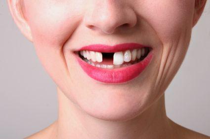 România fără dinți. Jumătate dintre români îți pierd dinții până la 40 de ani